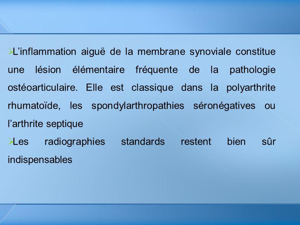 L'inflammation aiguë de la membrane synoviale constitue une lésion élémentaire fréquente de la pathologie ostéoarticulaire. Elle est classique dans la polyarthrite rhumatoïde, les spondylarthropathies séronégatives ou l'arthrite septique