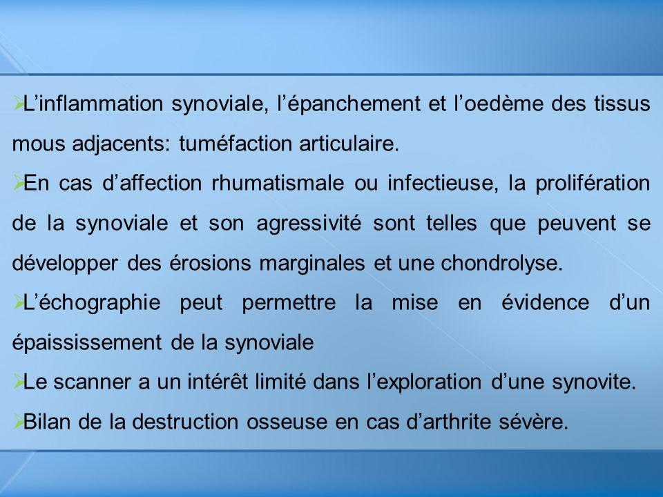 L'inflammation synoviale, l'épanchement et l'oedème des tissus mous adjacents: tuméfaction articulaire.