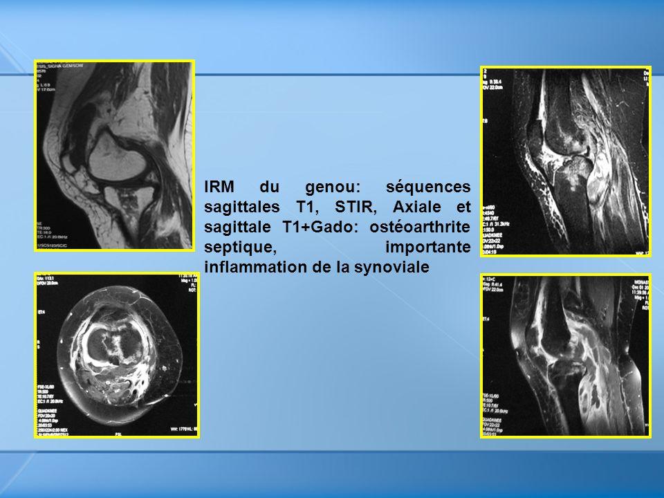 IRM du genou: séquences sagittales T1, STIR, Axiale et sagittale T1+Gado: ostéoarthrite septique, importante inflammation de la synoviale