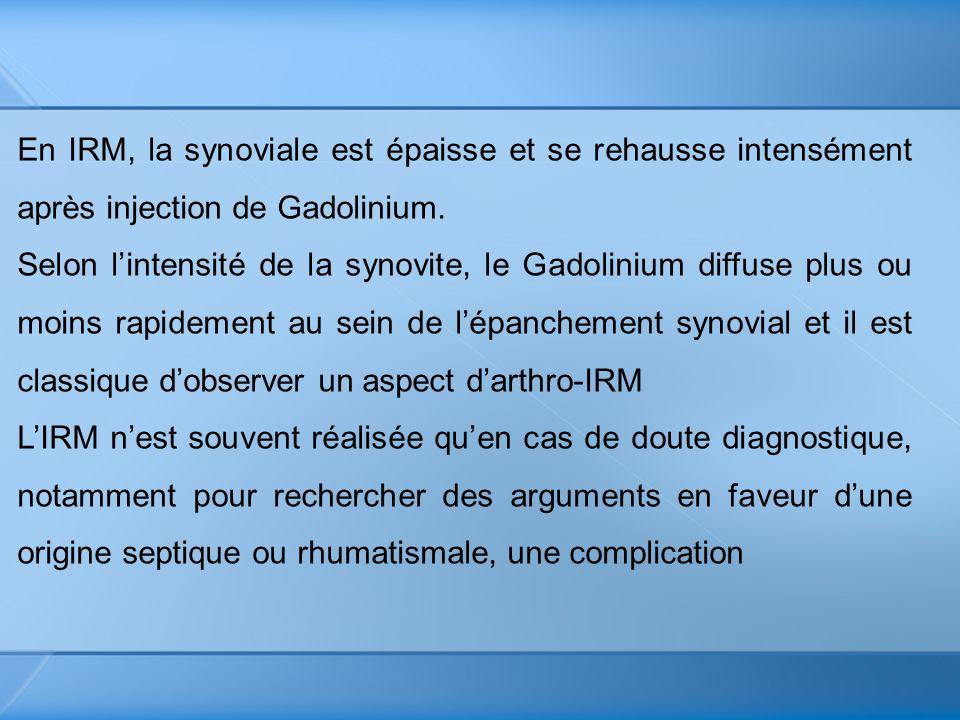 En IRM, la synoviale est épaisse et se rehausse intensément après injection de Gadolinium.