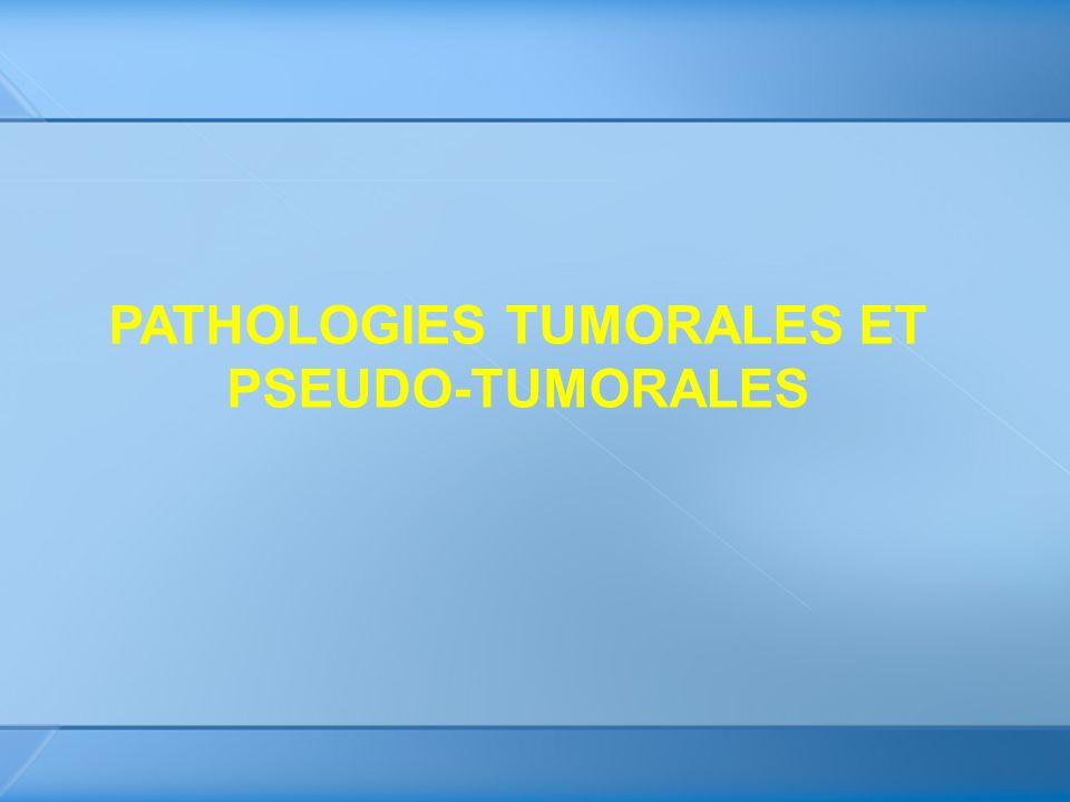 PATHOLOGIES TUMORALES ET PSEUDO-TUMORALES