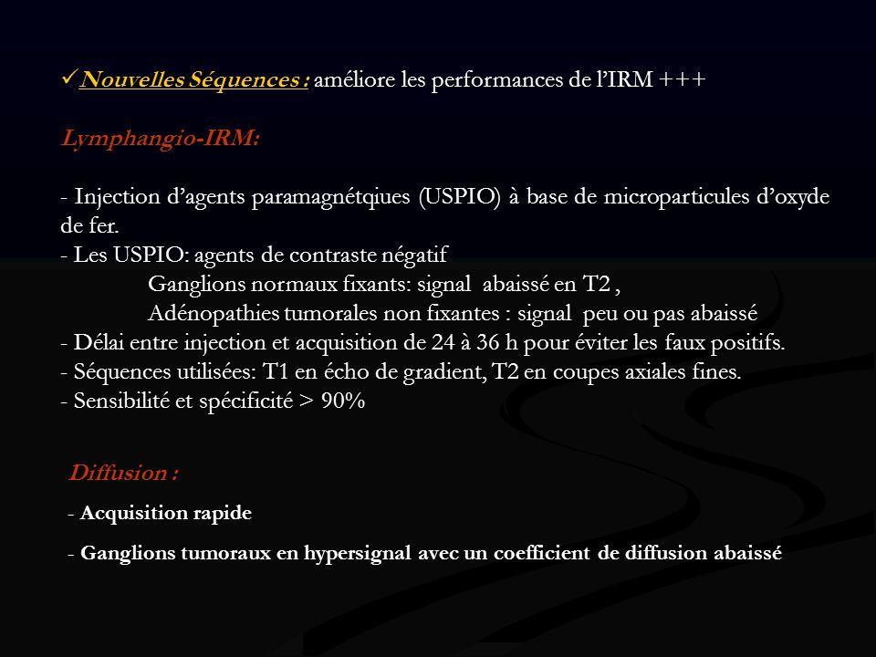 Nouvelles Séquences : améliore les performances de l'IRM +++
