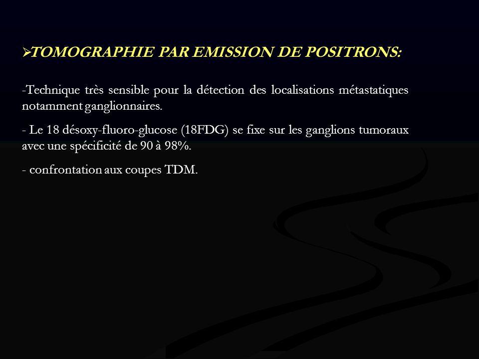 TOMOGRAPHIE PAR EMISSION DE POSITRONS: