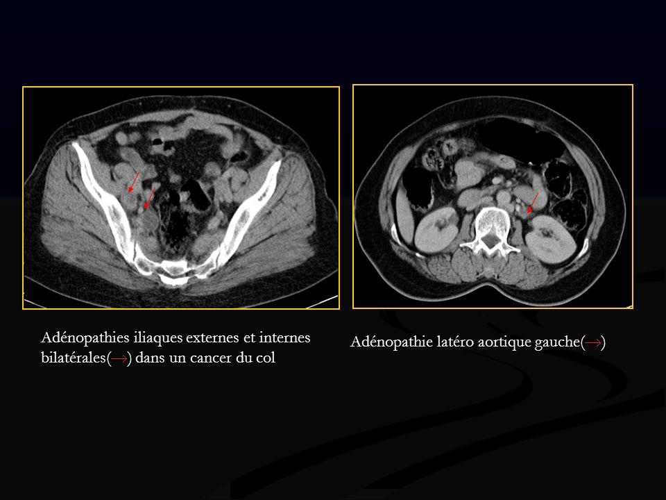 Adénopathies iliaques externes et internes bilatérales() dans un cancer du col
