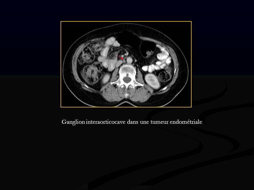 Ganglion interaorticocave dans une tumeur endométriale