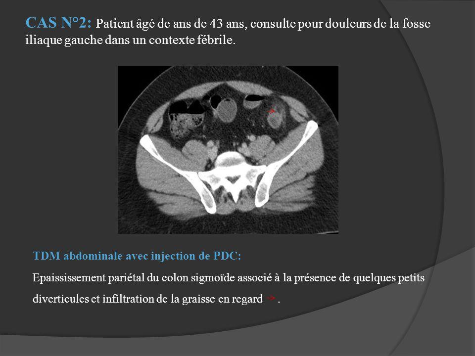 CAS N°2: Patient âgé de ans de 43 ans, consulte pour douleurs de la fosse iliaque gauche dans un contexte fébrile.