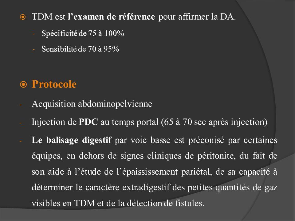 Protocole TDM est l'examen de référence pour affirmer la DA.