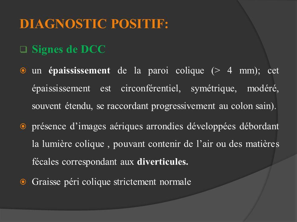DIAGNOSTIC POSITIF: Signes de DCC