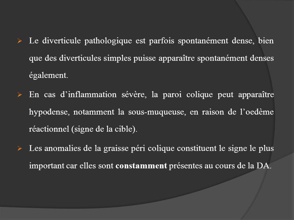 Le diverticule pathologique est parfois spontanément dense, bien que des diverticules simples puisse apparaître spontanément denses également.