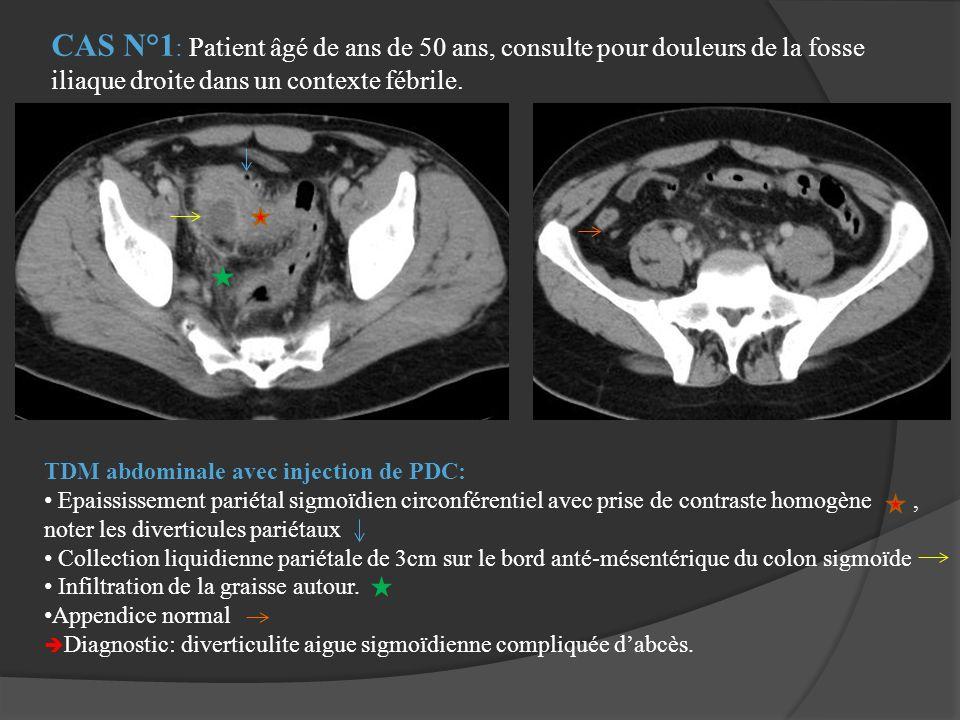 CAS N°1: Patient âgé de ans de 50 ans, consulte pour douleurs de la fosse iliaque droite dans un contexte fébrile.