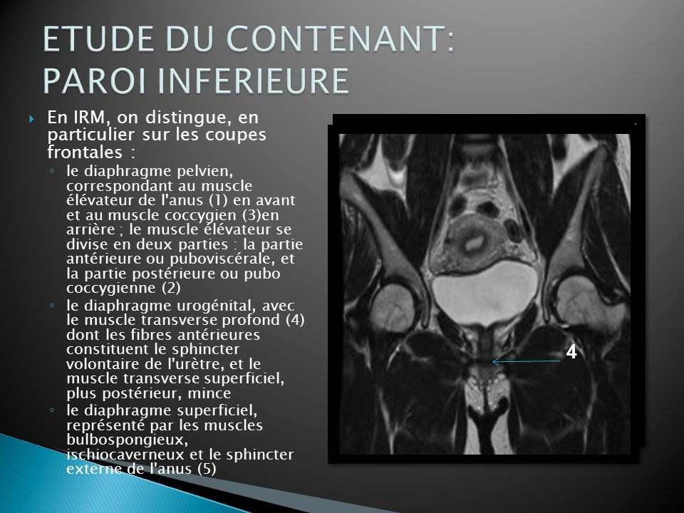 ETUDE DU CONTENANT: PAROI INFERIEURE