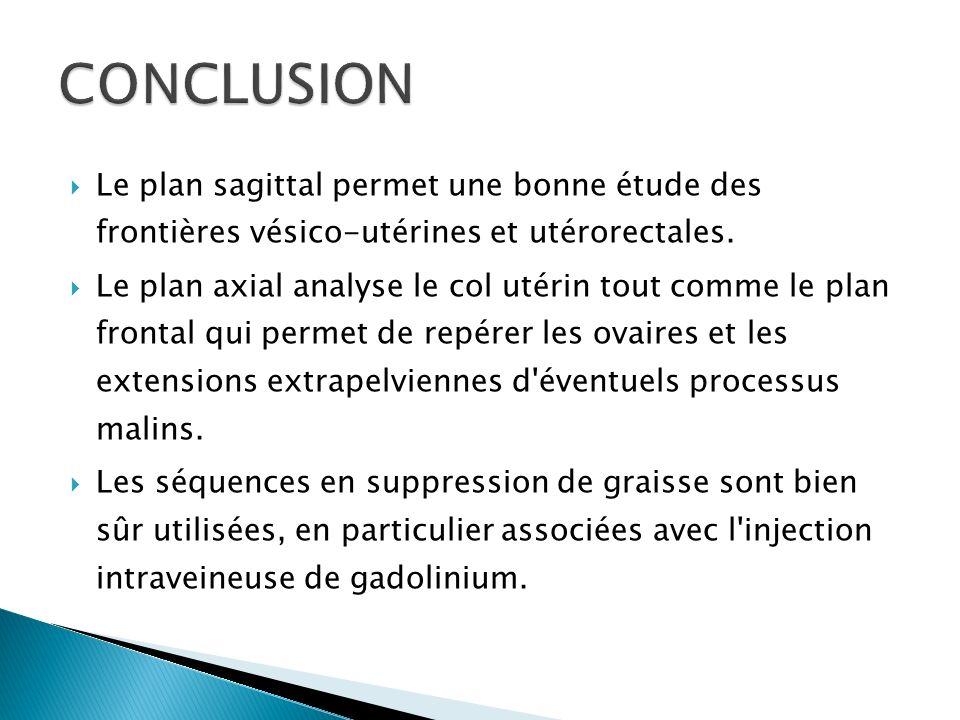 CONCLUSIONLe plan sagittal permet une bonne étude des frontières vésico-utérines et utérorectales.
