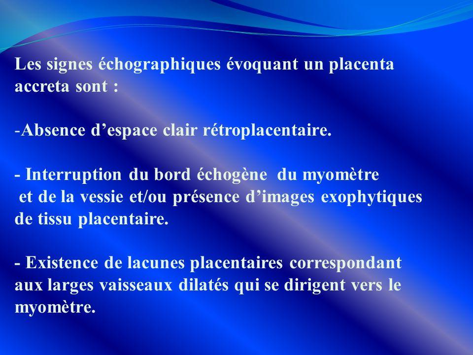 Les signes échographiques évoquant un placenta