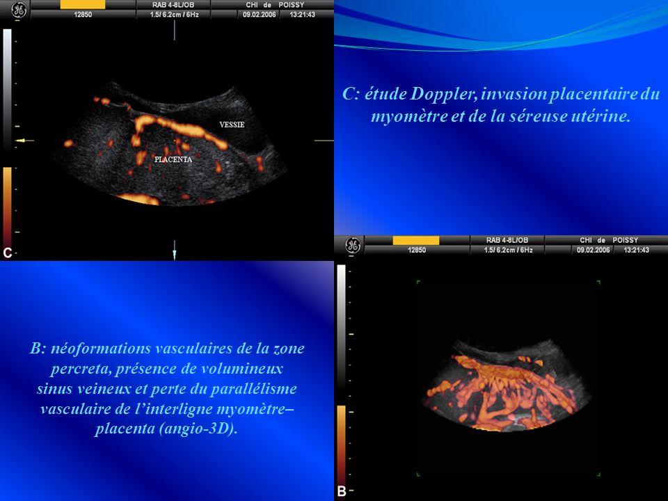 C: étude Doppler, invasion placentaire du myomètre et de la séreuse utérine.