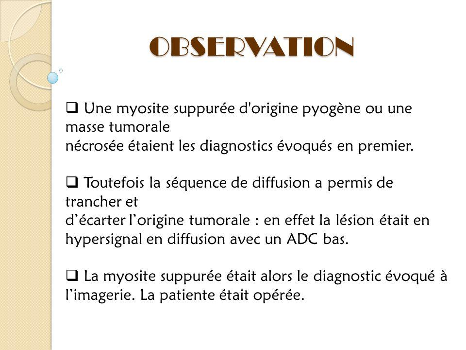 OBSERVATION Une myosite suppurée d origine pyogène ou une masse tumorale. nécrosée étaient les diagnostics évoqués en premier.