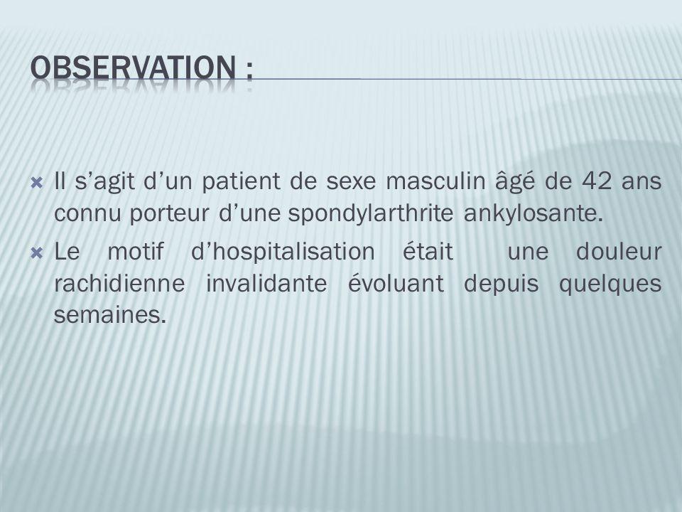 Observation : Il s'agit d'un patient de sexe masculin âgé de 42 ans connu porteur d'une spondylarthrite ankylosante.