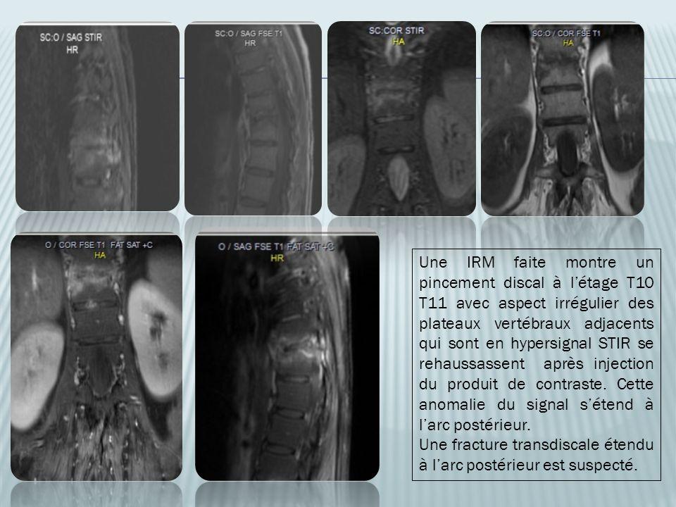 Une IRM faite montre un pincement discal à l'étage T10 T11 avec aspect irrégulier des plateaux vertébraux adjacents qui sont en hypersignal STIR se rehaussassent après injection du produit de contraste. Cette anomalie du signal s'étend à l'arc postérieur.