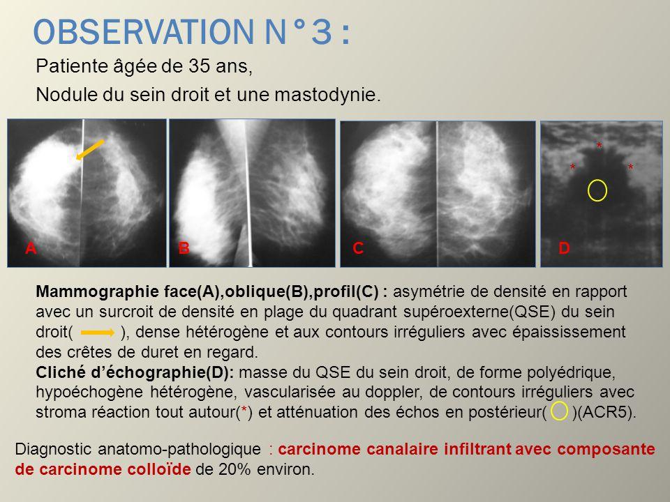 OBSERVATION N°3 :Patiente âgée de 35 ans, Nodule du sein droit et une mastodynie. * * * A. B. C. D.
