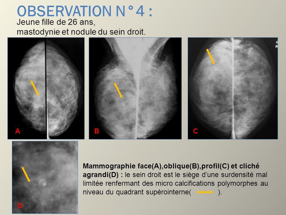 OBSERVATION N°4 : Jeune fille de 26 ans, mastodynie et nodule du sein droit. B. A. B. C.