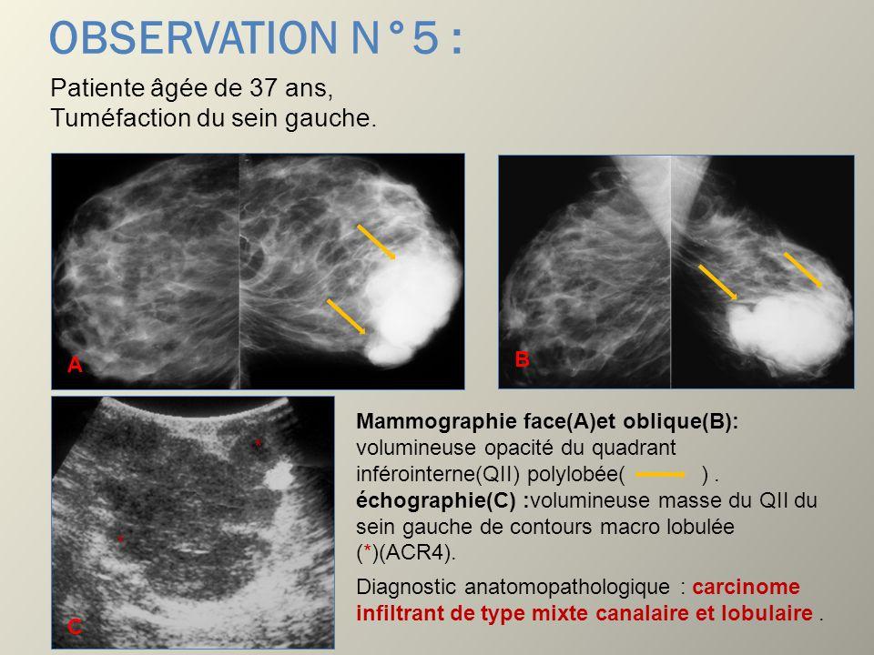 OBSERVATION N°5 : Patiente âgée de 37 ans, Tuméfaction du sein gauche.