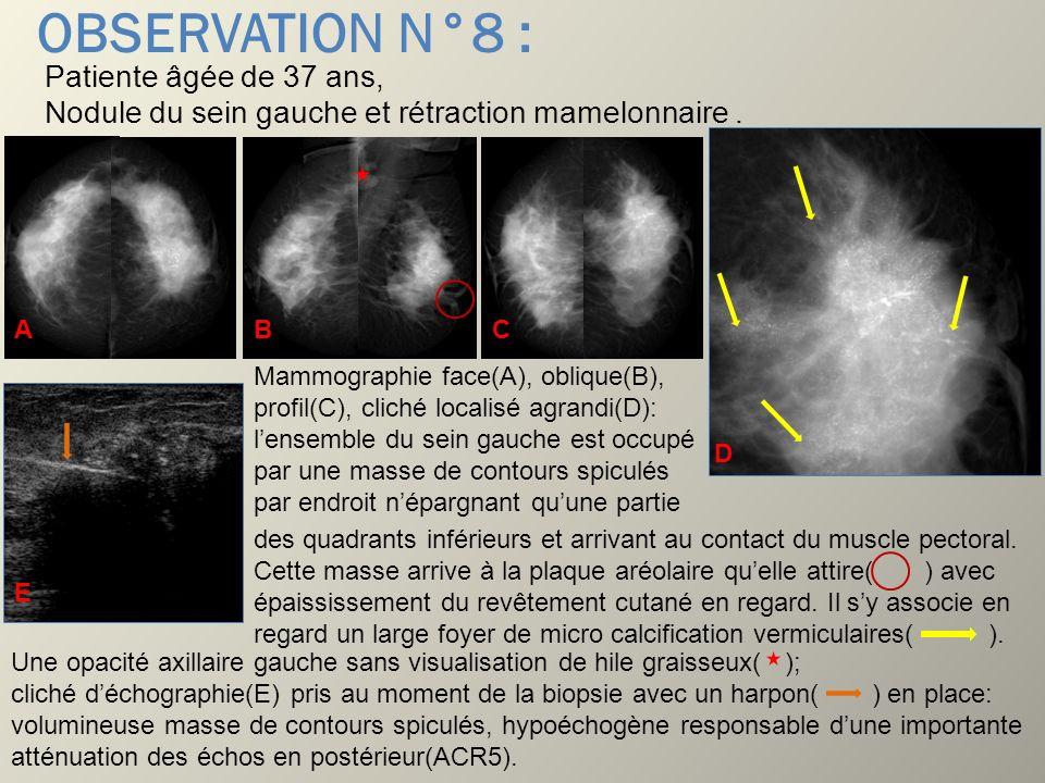 OBSERVATION N°8 : Patiente âgée de 37 ans, Nodule du sein gauche et rétraction mamelonnaire . A. B.