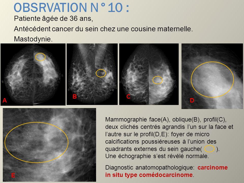 OBSRVATION N°10 : Patiente âgée de 36 ans, Antécédent cancer du sein chez une cousine maternelle. Mastodynie.