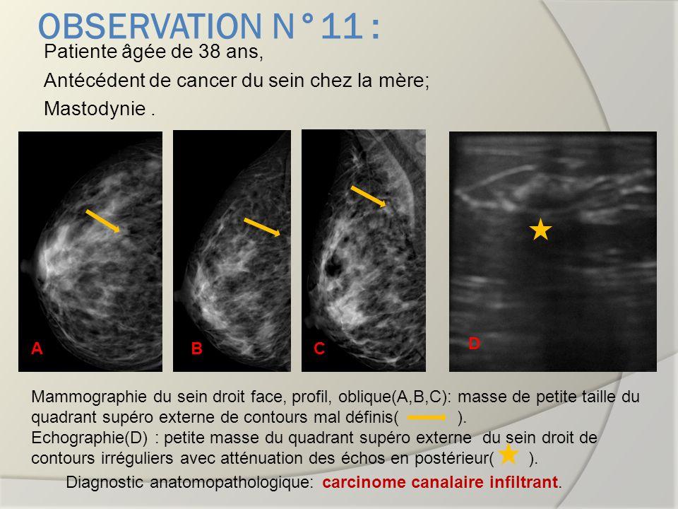 OBSERVATION N°11 : Patiente âgée de 38 ans, Antécédent de cancer du sein chez la mère; Mastodynie .