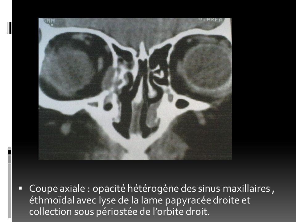 Coupe axiale : opacité hétérogène des sinus maxillaires , éthmoïdal avec lyse de la lame papyracée droite et collection sous périostée de l'orbite droit.