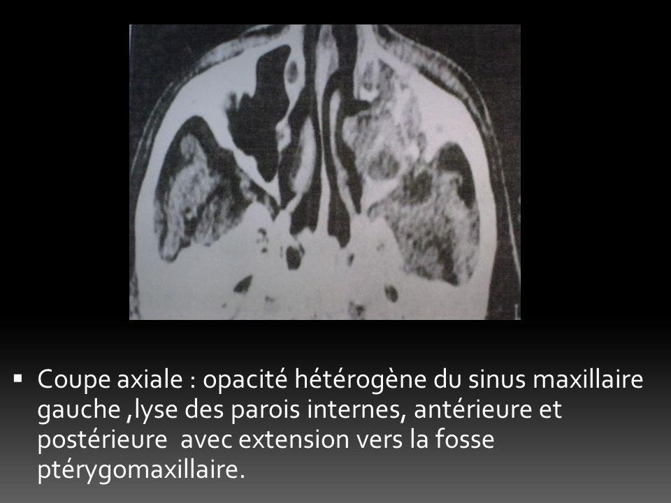 Coupe axiale : opacité hétérogène du sinus maxillaire gauche ,lyse des parois internes, antérieure et postérieure avec extension vers la fosse ptérygomaxillaire.