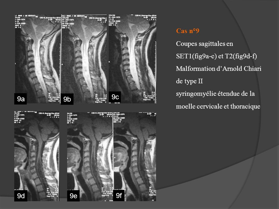 Cas n°9 Coupes sagittales en SET1(fig9a-c) et T2(fig9d-f) Malformation d'Arnold Chiari de type II syringomyélie étendue de la moelle cervicale et thoracique