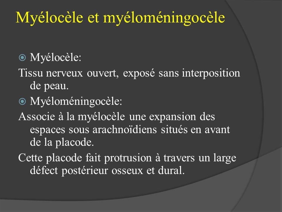 Myélocèle et myéloméningocèle