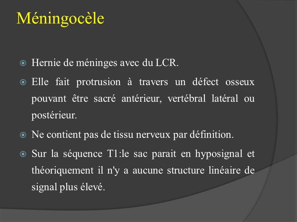 Méningocèle Hernie de méninges avec du LCR.