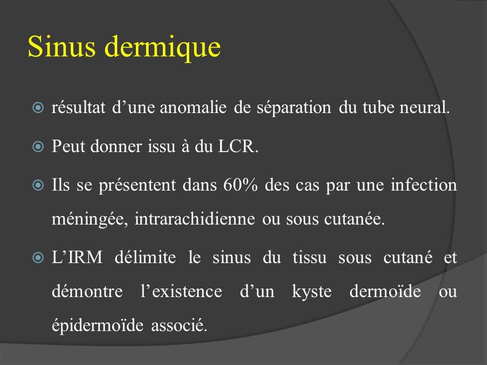 Sinus dermique résultat d'une anomalie de séparation du tube neural.