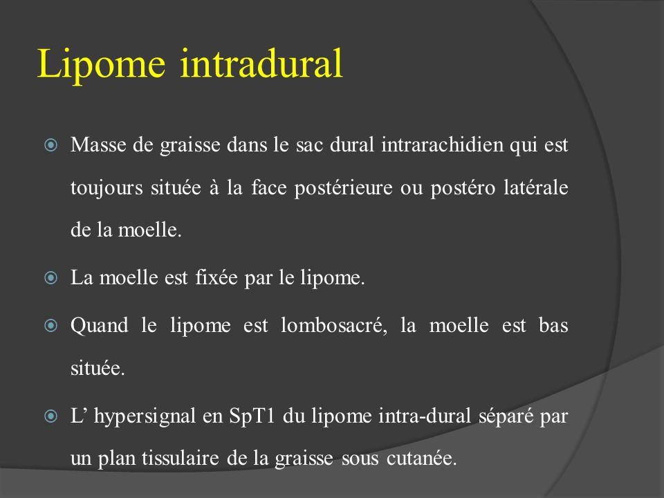 Lipome intradural Masse de graisse dans le sac dural intrarachidien qui est toujours située à la face postérieure ou postéro latérale de la moelle.