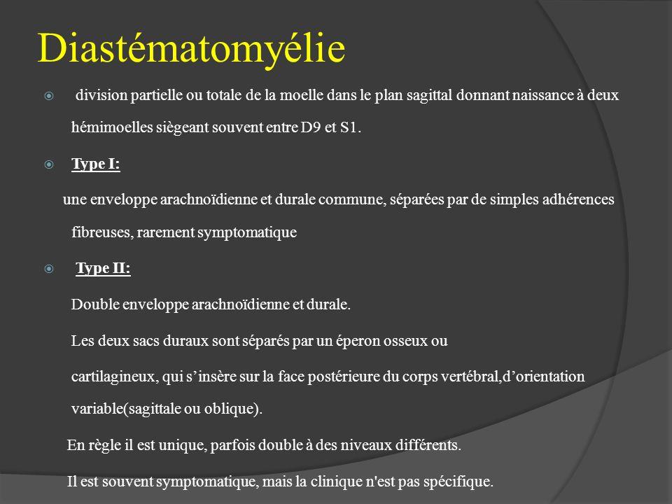 Diastématomyélie