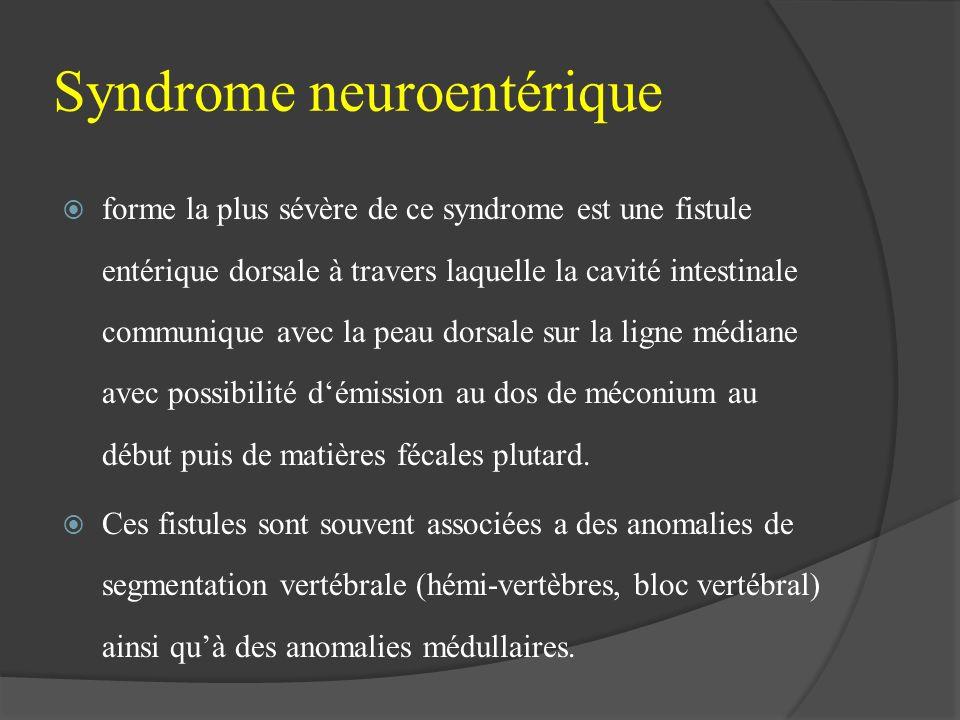 Syndrome neuroentérique