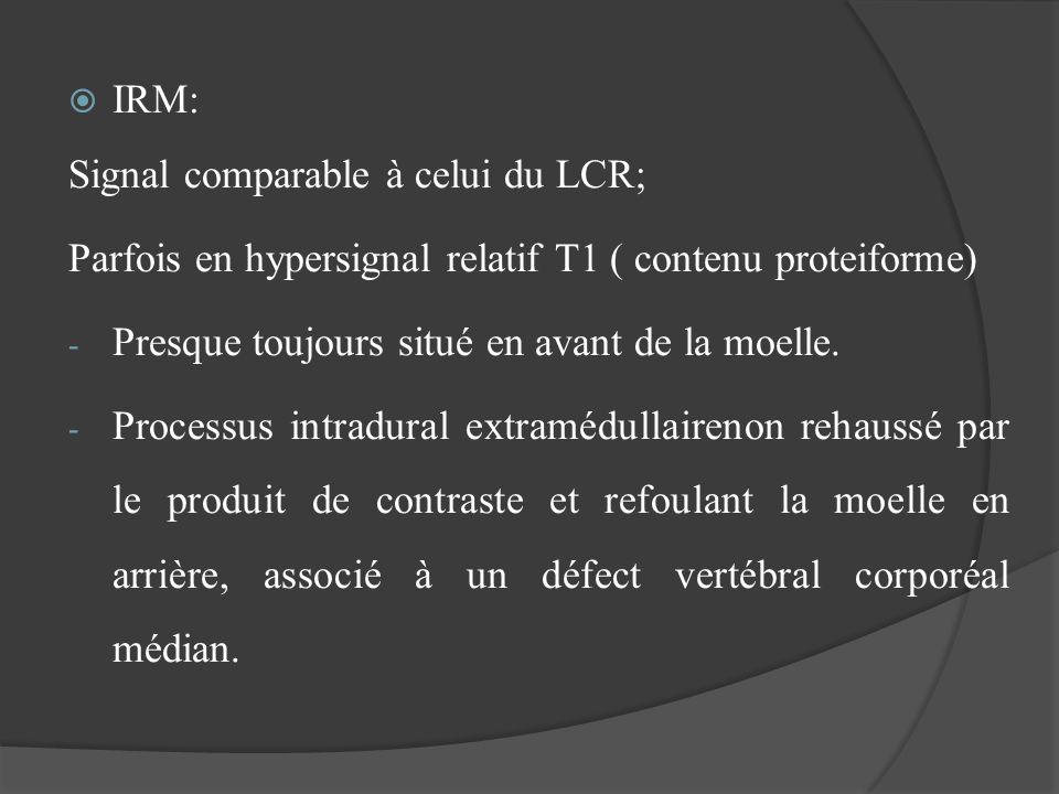 IRM:Signal comparable à celui du LCR; Parfois en hypersignal relatif T1 ( contenu proteiforme) Presque toujours situé en avant de la moelle.