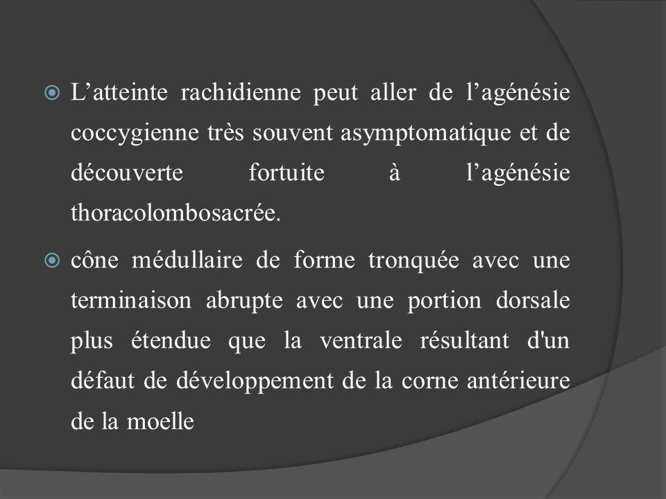 L'atteinte rachidienne peut aller de l'agénésie coccygienne très souvent asymptomatique et de découverte fortuite à l'agénésie thoracolombosacrée.