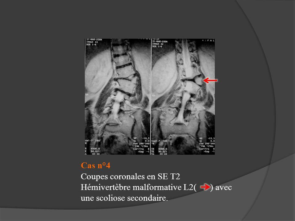 Cas n°4 Coupes coronales en SE T2 Hémivertèbre malformative L2( ) avec une scoliose secondaire.