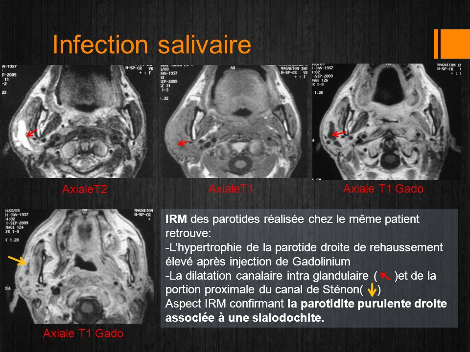 Infection salivaire AxialeT2 AxialeT1 Axiale T1 Gado