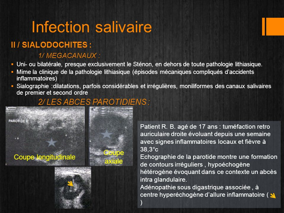 Infection salivaire II / SIALODOCHITES : 1/ MEGACANAUX : Coupe axiale