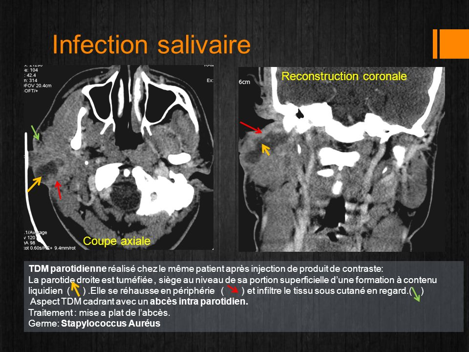 Infection salivaire Reconstruction coronale Coupe axiale