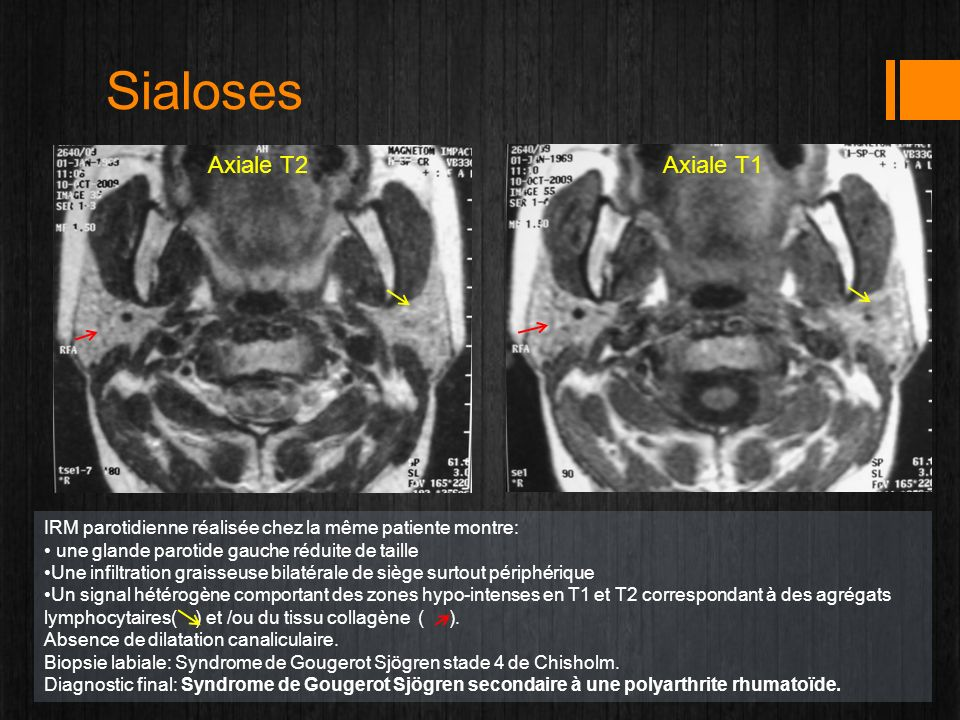 Sialoses Axiale T2 Axiale T1