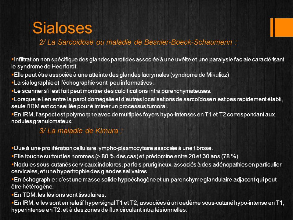 Sialoses 2/ La Sarcoidose ou maladie de Besnier-Boeck-Schaumenn :