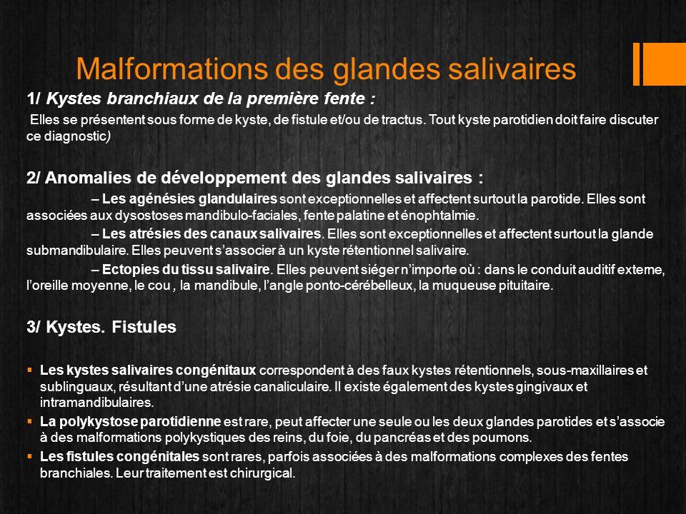 Malformations des glandes salivaires