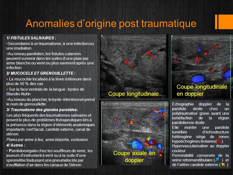 Anomalies d'origine post traumatique