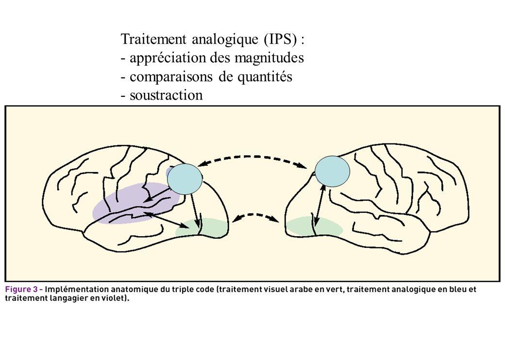 Traitement analogique (IPS) :