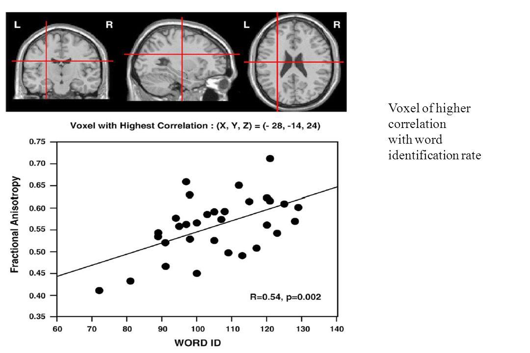 Voxel of higher correlation