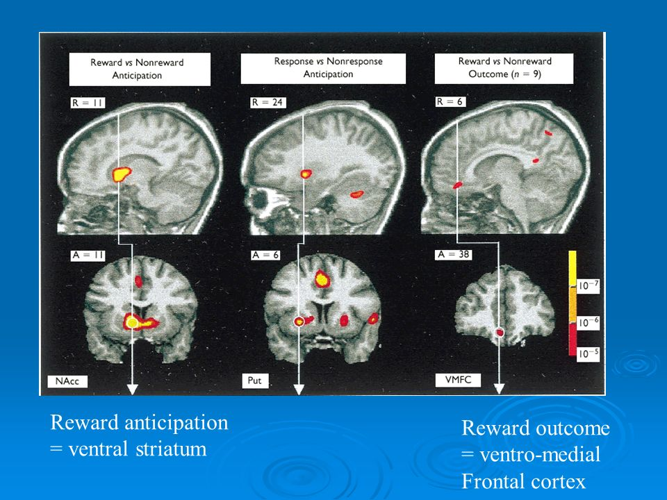 Reward anticipation = ventral striatum Reward outcome = ventro-medial Frontal cortex