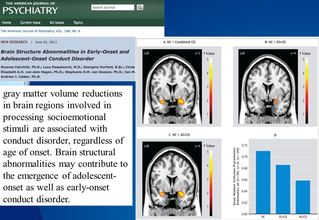gray matter volume reductions in brain regions involved in processing socioemotional stimuli are associated with conduct disorder, regardless of age of onset.